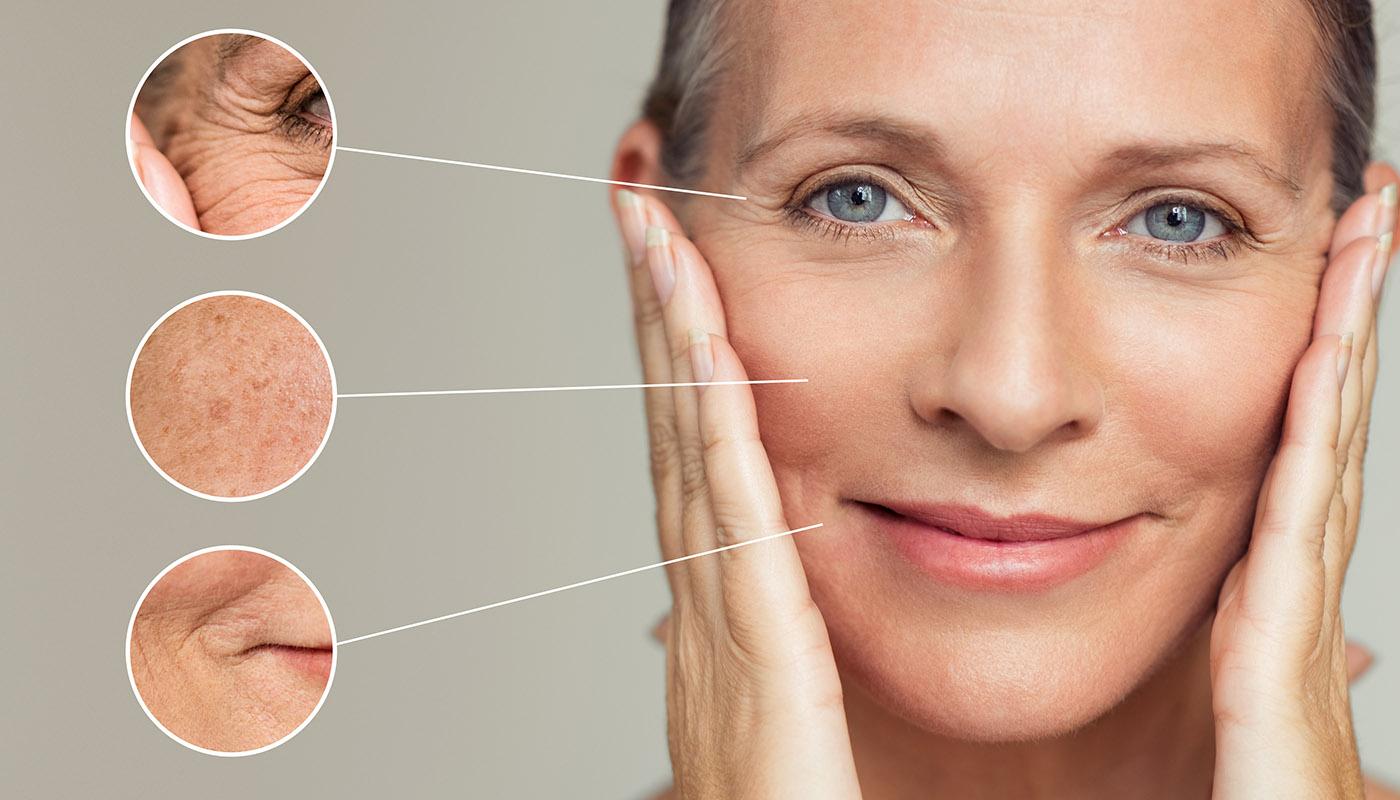 Hautverjüngerung